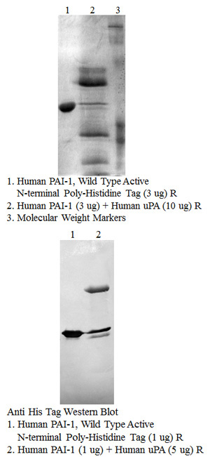 Human PAI-1 (wild type active fraction – N-terminal poly-histidine tag)