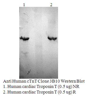 Anti Human cTnT, Clone 3B10