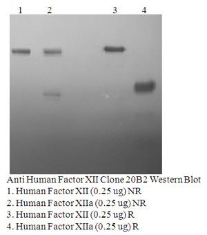 Anti Human Factor XII, Clone 20B2