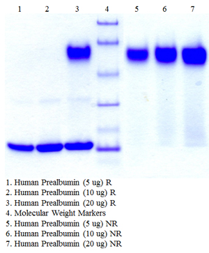 Prealbumin, Human Plasma