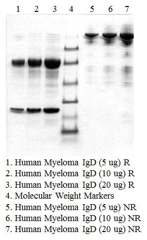 IgD, Human Myeloma Plasma