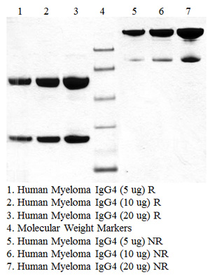 IgG4, Human Myeloma Plasma