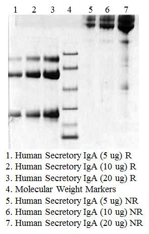 Secretory IgA, Human Colostrum