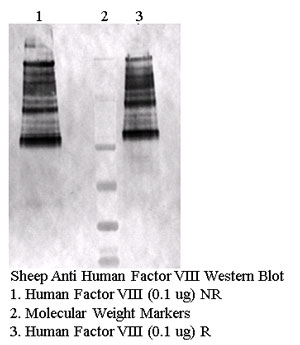 Sheep anti-Human Factor VIII