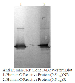 Anti Human CRP, Clone 16B2